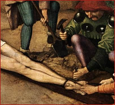oedipus swollen foot Oedipus the king the baby is rescued by a shepherd, who gives him the name of oedipus (or swollen foot) not having the means to raise the infant, the shepherd gives it to a fellow shepherd from a distant land.